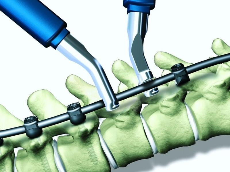 IPB Gandeng University of Nottingham Kembangkan Biomaterial Terjangkau untuk Implan Tulang
